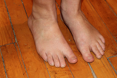 Foot drop and sexual dysfunction
